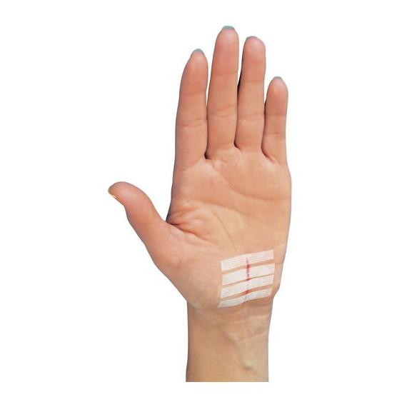 Sutures adhésives Steri Strip